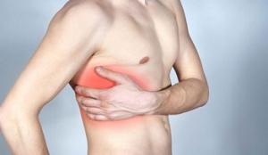 Межреберная невралгия как симптом остеохондроза