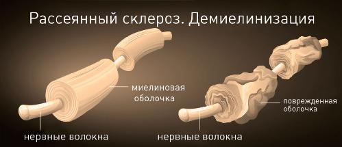 Причины рассеянного склероза нервных волокон