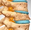 Артроз костей
