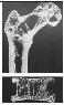 Остеопения костей
