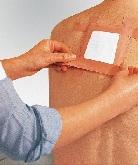 Пластырь при остеохондрозе