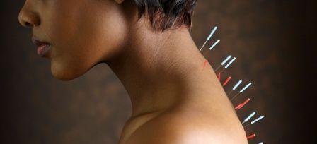 Иглоукалывание снимает симптомы остеохондроза