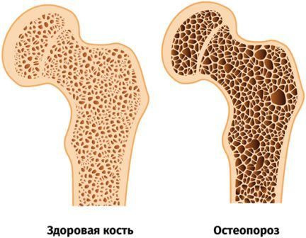 К какому врачу обратиться с остеопорозом