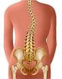 Кифосколиоз грудного отдела