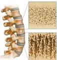 Остеопороз позвоночника лечение в домашних условиях