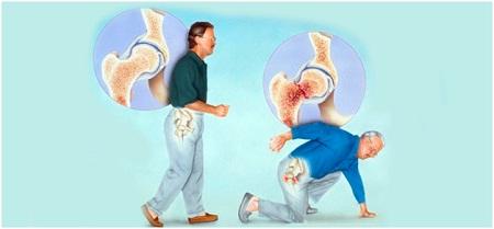 Клиника различных степеней остеопороза