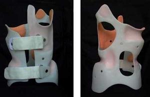 Правила ношения жесткого корсета при сколиозе