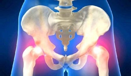 Проявления остеопороза тазобедренного сустава