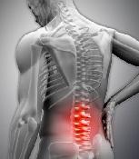 Субхондральный склероз