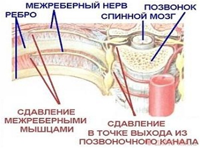 Механизм развития межреберной невралгии