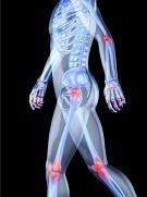 Причины остеосклероза