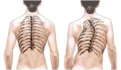 При сколиозе беспокоят боли в спине
