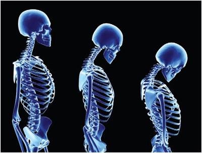 Как проявляется остеопороз костей