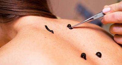 Применение гирудотерапии в лечении грыжи