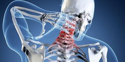 Проявления невралгии шейного отдела