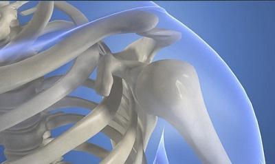Остеопороз поражает плечевой сустав