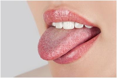 Почему возникает жжение в языке