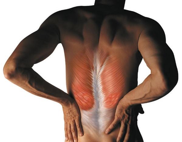 Спазм мышц спины в шейном, грудном, поясничном отделе