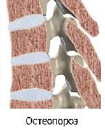 Остеопороз позвоночника