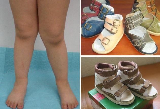 Ортопедическую обувь для детей