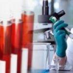Исследование на остеопороз с помощью анализа крови