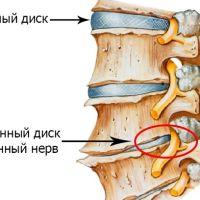Причины разрушения хрящевой ткани позвоночника и способы лечения