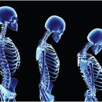 Что такое остеопороз костей и кому его опасаться?