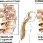 Последствия болезни Бехтерева: осложнения и прогноз для жизни