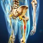 Защемление седалищного нерва как следствие остеохондроза
