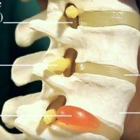 Причины боли в животе при остеохондрозе, методы диагностики и лечение патологии