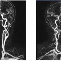 Непрямолинейность хода позвоночных артерий