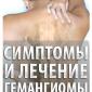 Симптомы и лечение гемангиомы позвоночника