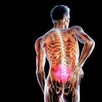Симптомы и причины появления опухоли позвоночника