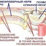 Основные методы снятия острой боли при межреберной невралгии