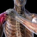 Основные симптомы и эффективное лечение ушиба плеча