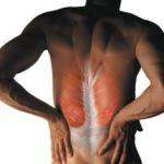 Причины и лечение спазма мышц спины