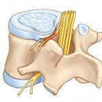 Описание, симптомы, виды протрузии межпозвоночного диска.